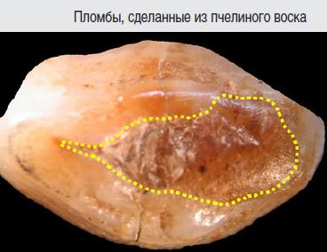 Ученые выяснили, как лечили зубы в каменном веке