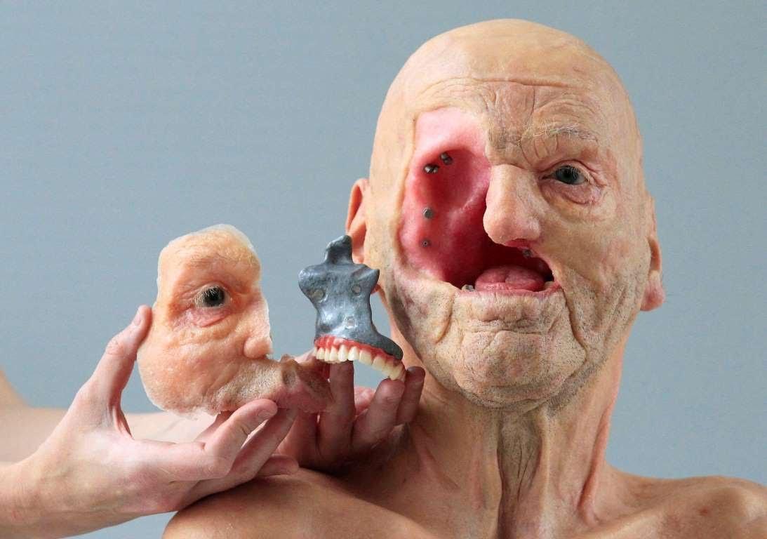 3D-принтер: «запчасти» для человека