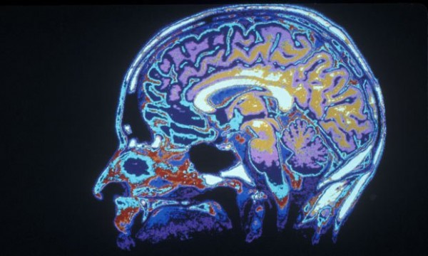 Особенности мозга подростка