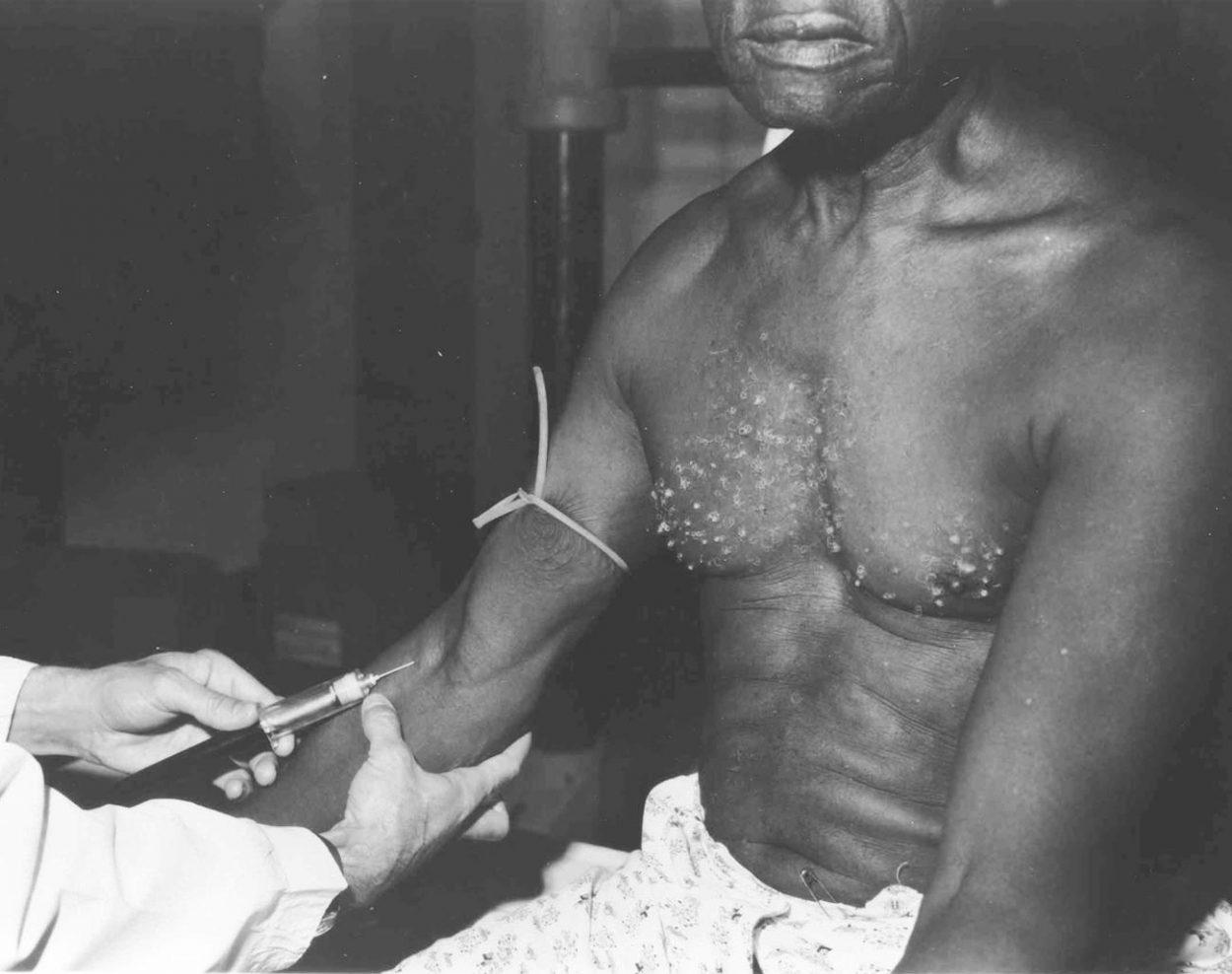 Эксперимент Таскиги - как американцы проводили опыты на чернокожих