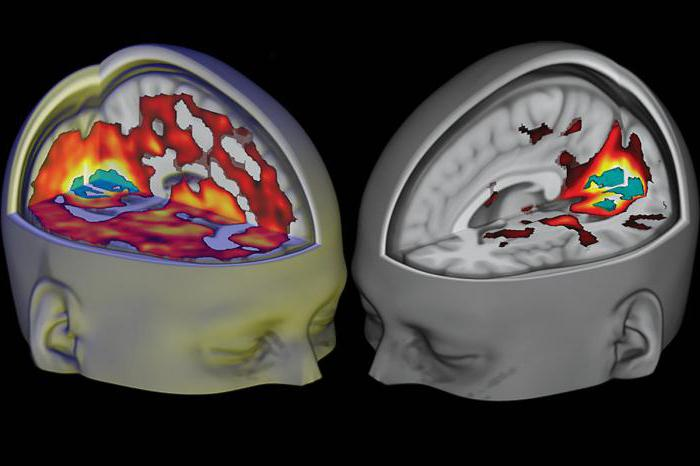 Изменения мозга связанные с профессиональной деятельностью