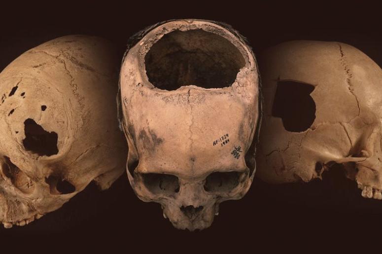 Нейрохирурги палеолита. Зачем древние люди делали операции на черепе?