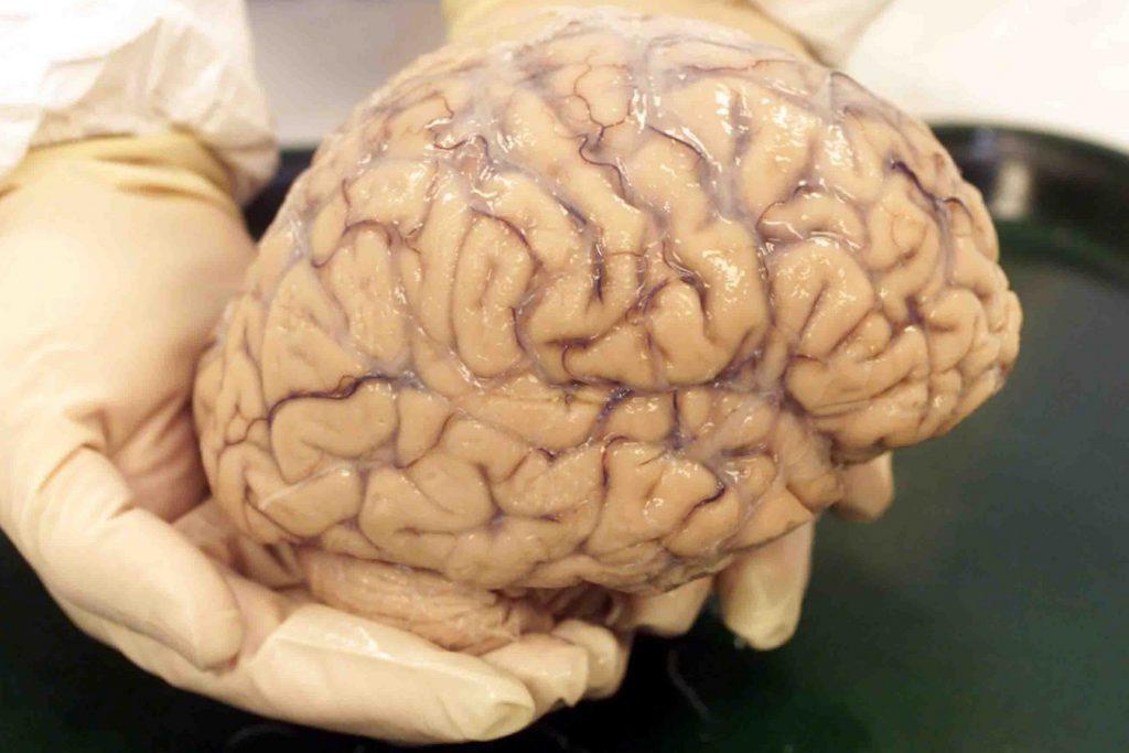 Человеческий мозг - загадка природы